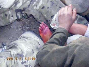 Injured foot