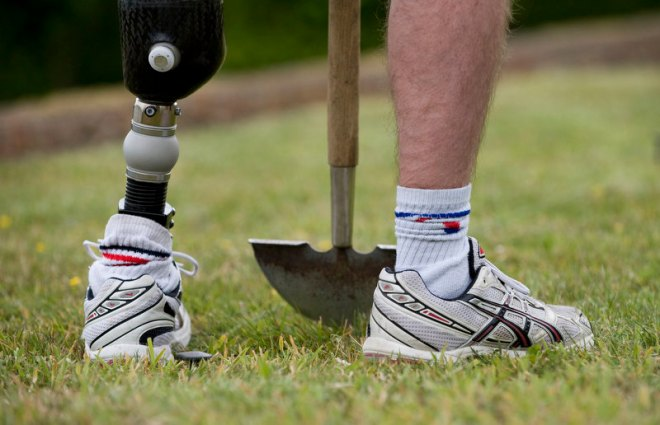An injured soldier cuts turf in preparation for a garden in the grounds of Headley Court.