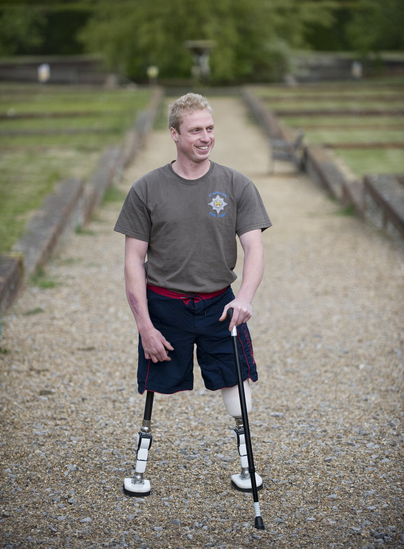 Guardsman Colum McGeown, 27, serves with 1st Battalion Irish Guards and is undergoing physiotherapy treatment at Headley Court after a severe injury following an improvised explosive device blast in Afghanistan.